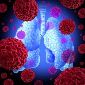 סרטן הריאות